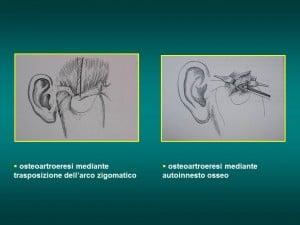 trattamento chirurgico Lussazioni ATM