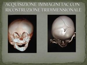 PLAGIOCEFALIA-2