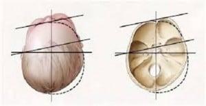 Plagiocefalia - ricostruzione del cranio neonato