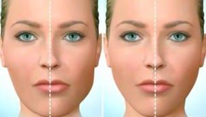 trattamenti_chirurgia_maxillo-facciale