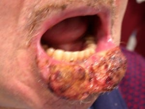 carcinoma-labbro