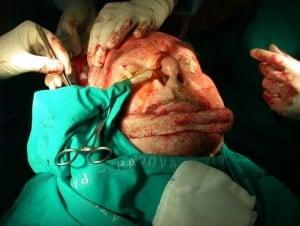carcinoma-labbro2