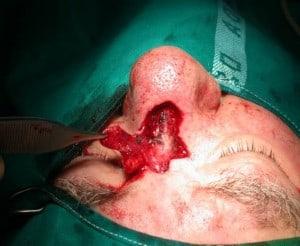 carcinoma-naso2