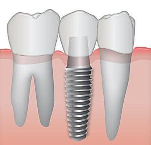 servizi_implantologia