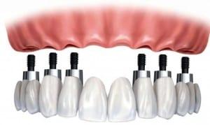implantologia immediata